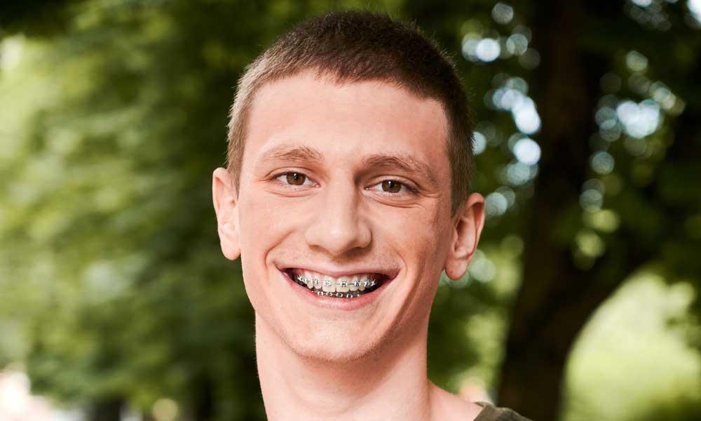 biggs hansen orthodontics indianapolis in Orthodontic Dictionary Orthodontic Procedures image