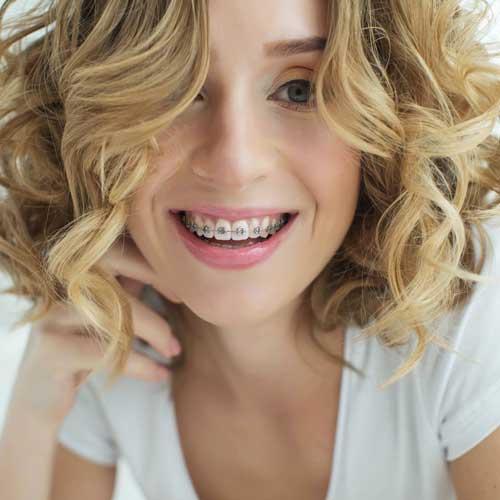 biggs hansen orthodontics indianapolis in orthodontics for adults image